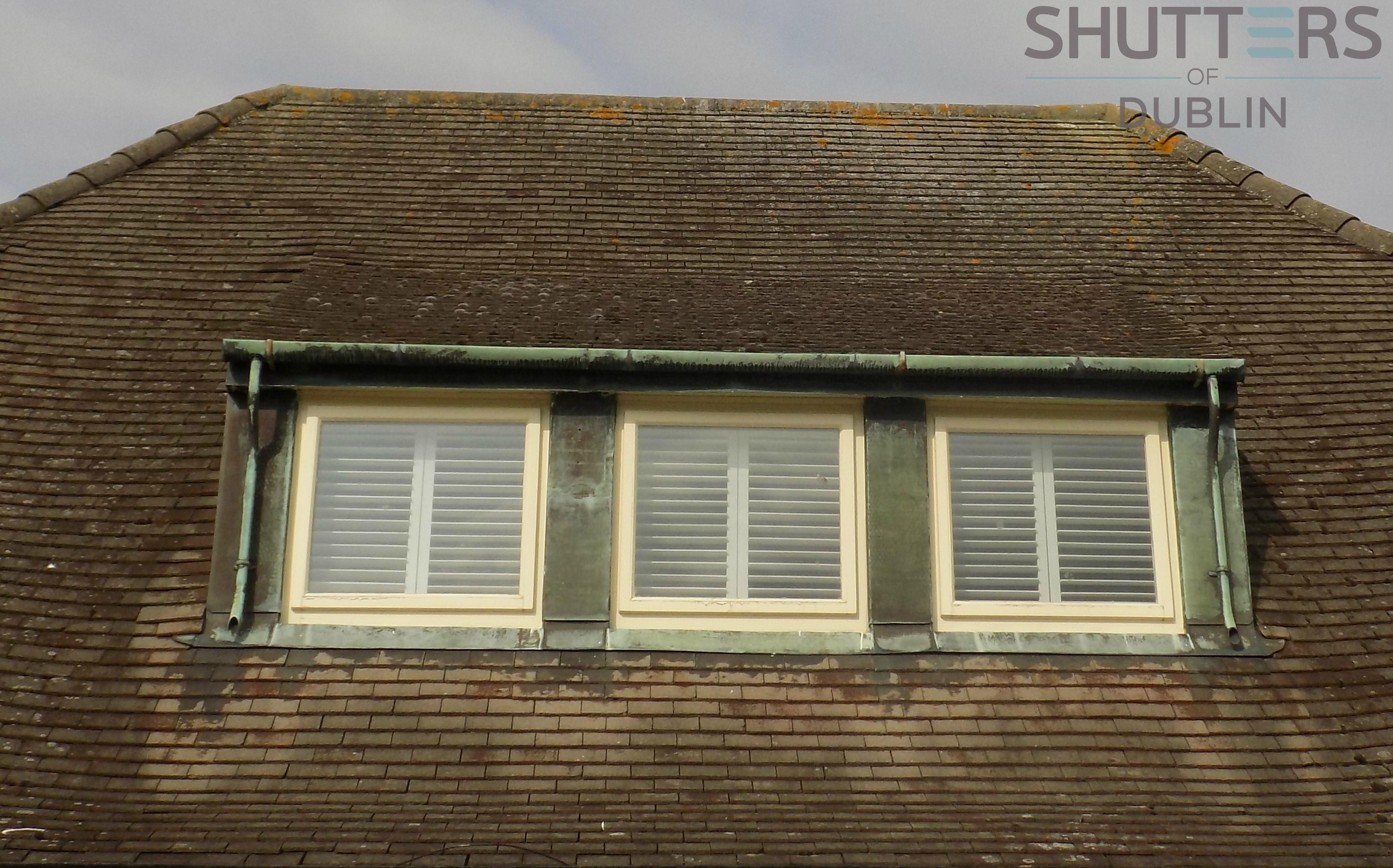 Before After Plantation Shutters Makeover For Sutton Home Shutters Of Dublin Cork Galway